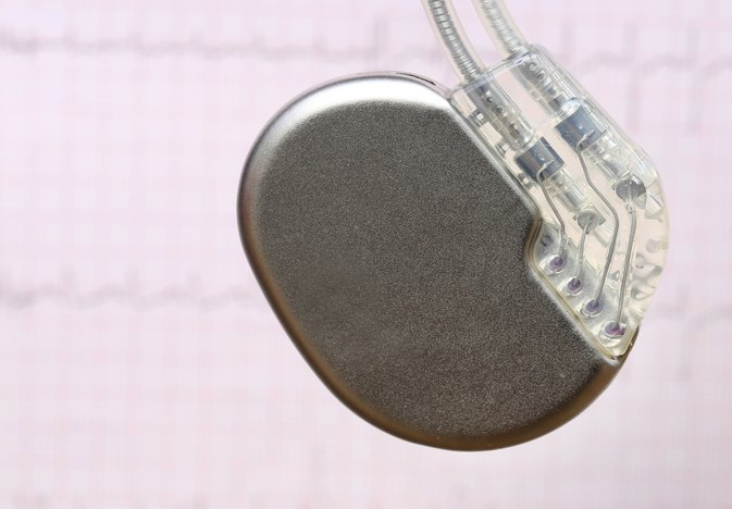 What Are the Side Effects of a Pacemaker?