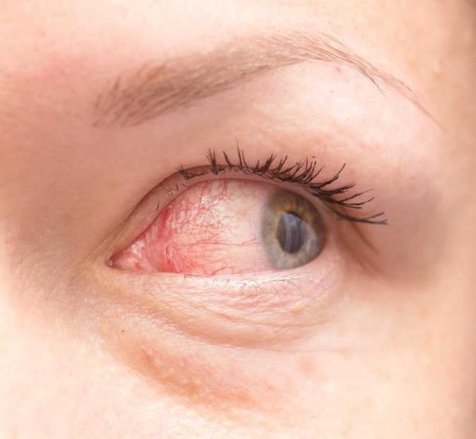 3 Ways to Prevent Spreading Pink Eye