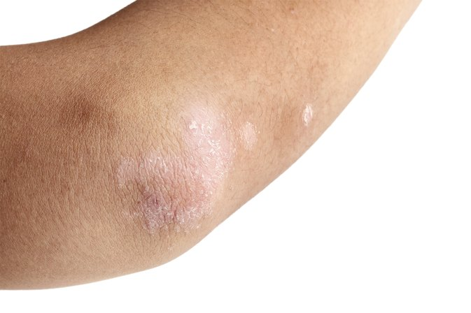 Home Remedies for Dry Itchy Skin on Elbows