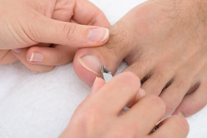 Home Remedies for Cutting Thick Toenails | LIVESTRONG.COM