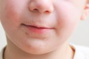 A Toddler's Dry Cracked Lips