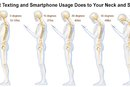 Here's What Texting Is Doing to Your Neck and Spine – and How to Fix It!
