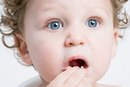 Red Spots on the Mouth & Bad Breath in Toddlers