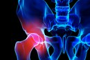 Causes of Pain in the Hip and Groin Area