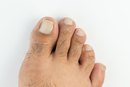 How to Get Rid of Dry Feet & Ugly Toenails