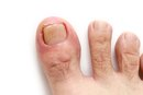 How Do I Know If I Have an Ingrown Toenail Infection?