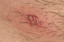 Treatment for Shingles Blisters