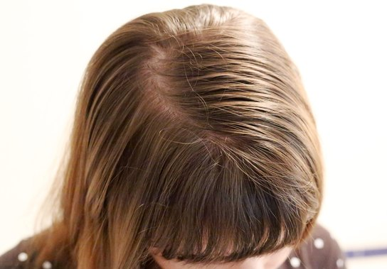 Hair Care Tips for Fine, Thin, Oily Hair