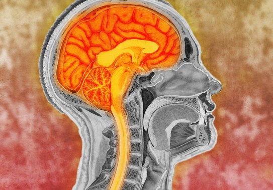 Causes, Risk Factors and Prevention of Parkinson's Disease