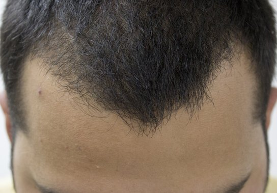 Top 10 Best Hair Loss Treatments