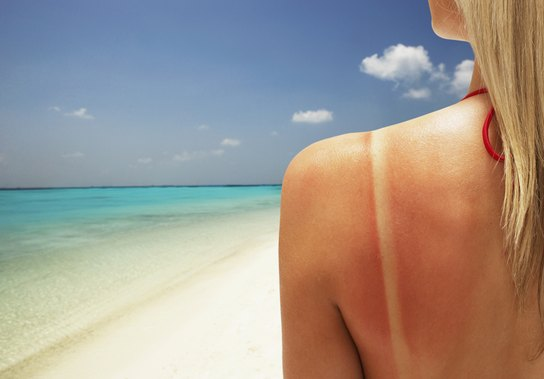 What is Sunburn?
