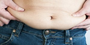 One Great Answer: How Can I Lose Excess Skin …