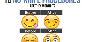 10 No-Knife Beauty Procedures: Are They Worth…
