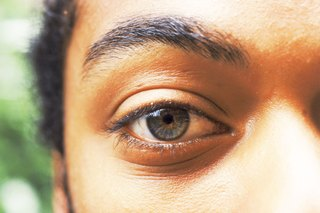 Chalazion and Eyelash Loss