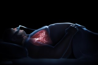 Tests and Diagnosis for Sleep Apnea