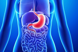 Causes, Risk Factors and Prevention of Acid Reflux Disease