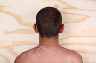 Signs and Symptoms of Sunburn