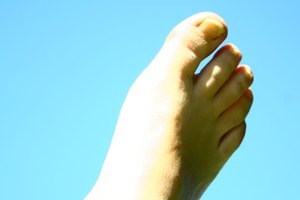 How to Determine Foot Pronation