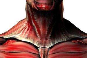 What Are the Causes of Muscle Spasms in the Neck?