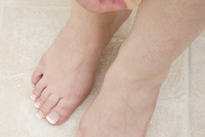 How to Reduce Swollen Legs & Feet