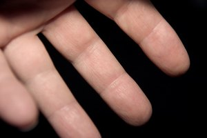 Home Remedies to Remove Corns on the Finger