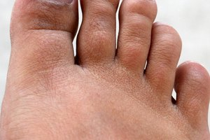 About Toenail Fungus Laser Treatment