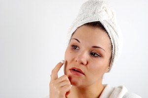 Why Does Pus From Acne Have an Odor?
