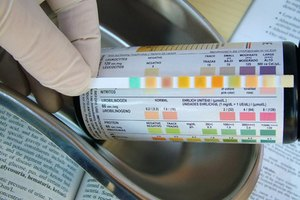 Protein & Blood in Your Urine