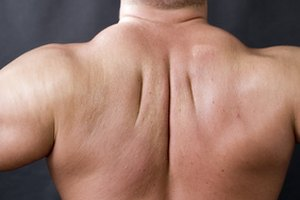 Exercises to Increase Neck Size