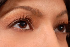 Dry Skin & Wrinkles Under the Eyes