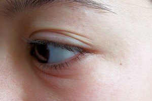 How to Get Rid of Swollen Eyes Due to Crying