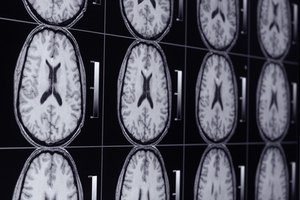 Can I Eat Before an MRI Brain Scan?