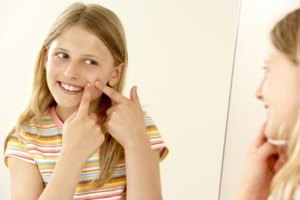 How to Get Rid of Acne Scars and Big Pores