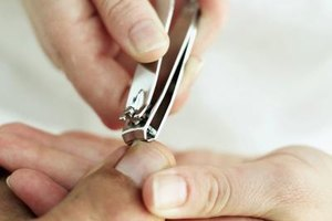 How to Cut Out an Ingrown Toenail Edge