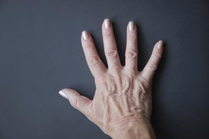Can Low Salt Intake Improve Bulging Veins on Your Hands…