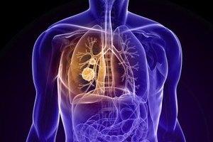 Fucoidan for Lung Cancer