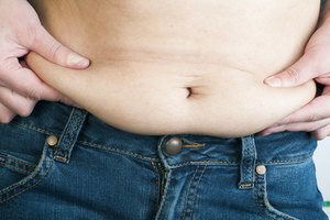 One Great Answer: How Can I Lose Excess Skin After Weig…