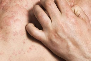 Common Shingles Rash Sites