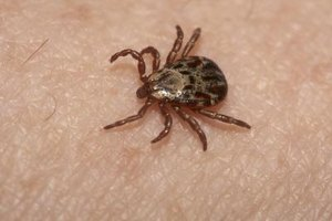 Lyme Disease Neurological Symptoms