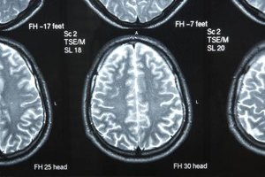 Brain Cysts Symptoms