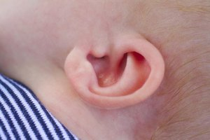 A Crease in an Infant's Ear