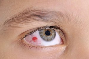 What Are the Treatments for a Sticky Eye From a Head Co…