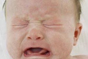 Blotchy Skin Rash on a Baby's Face