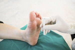 5 Things You Need to Know About Shoes For Foot Neuropat…