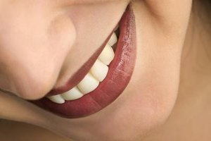 Disadvantages of Tooth Whitening