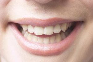 How to Whiten Teeth With Peroxide