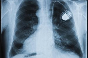 What Are the Benefits of a Pacemaker?
