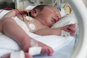 Odds of Survival for a Premature Baby