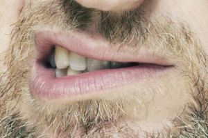 How to Get Rid of Dry Mouth Naturally
