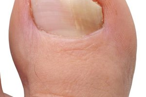 How to Use Tea Tree Oil to Treat Fungal Nail Infection